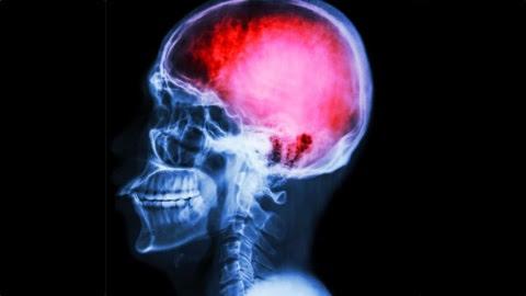 Infarto Cerebral: cómo evitarlo y qué hacer en caso de que se presente